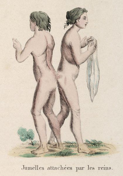 Two females born attached by their buttocks