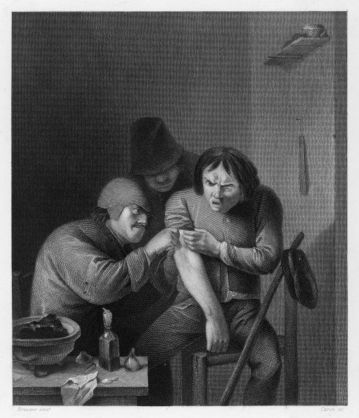 A barber-surgeon treating a patient
