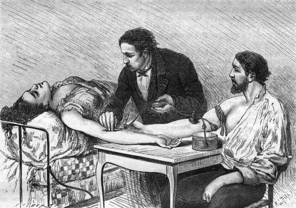 Direct transfusion of blood from one patient to another, performed by Dr. Roussel in Geneva Date: 1882