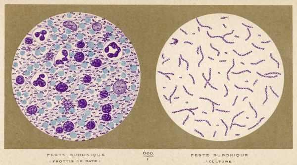 Bacillus of bubonic plague - smear and culture : discovered by Yersin at Hong- Kong, 1894