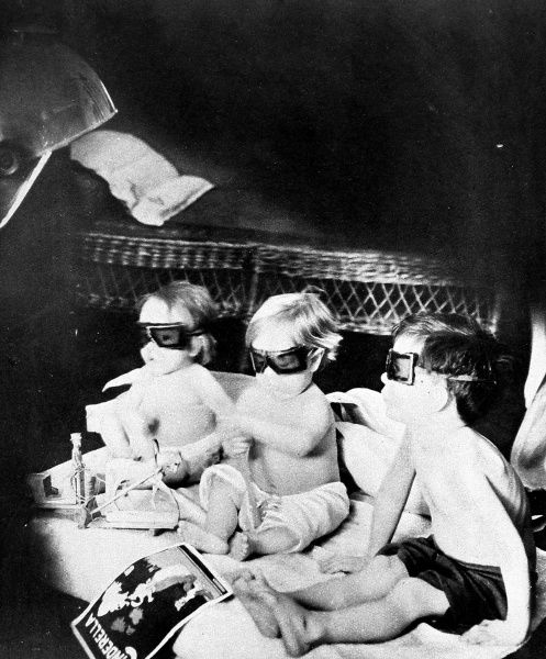Three children being treated with ultra-violet rays to cure rickets. Their goggles were designed to protect them from becoming sun burnt in the artificial sunlight
