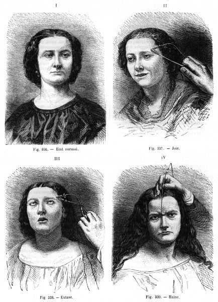 French doctor Duchenne (de Boulogne) demonstrates how facial expressions can be altered by applying electrical current to different muscles of the face Date: circa 1860
