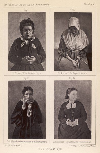 Three of Voisin's patients at the Salpetriere, classed by him as 'lypemaniaque' (term not in any dictionary !) The lower pictures show Mme Ball... before & after treatment