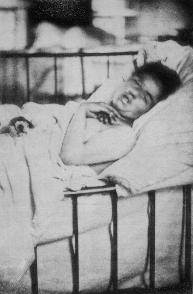 Mental patient exhibiting hysterical contraction of the arm, whilst in hospital bed Date: 1876