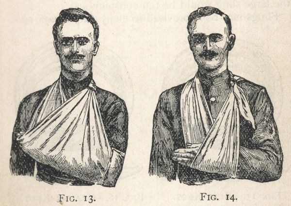 Illustration of a large arm sling (left) and a small arm sling (right)