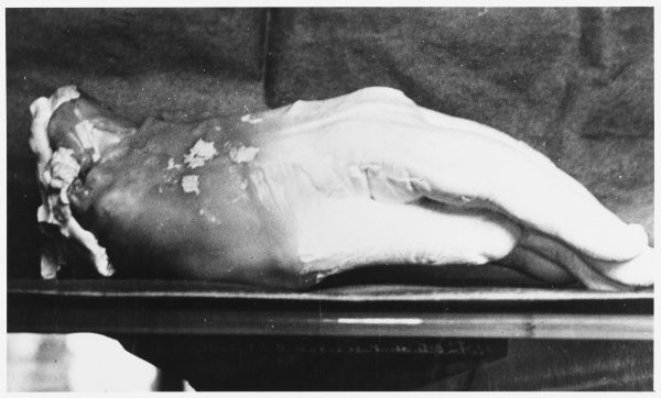 Cast of a spirit 'glove' made at Warsaw by Franek Kluski (pseudonym) (1874 - ?) in the presence of Richet, Geley and others