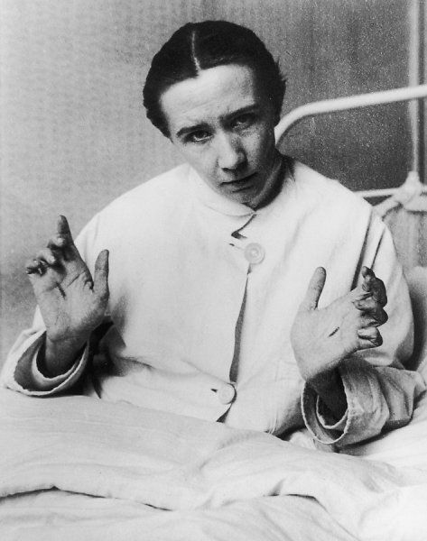 BERTHA MRAZEK, also known as 'Georges Marasco' Belgian dual personality subject who displayed remarkable stigmata picture 1 of 3 - the hands