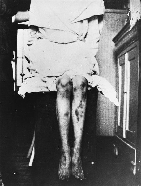 BERTHA MRAZEK, also known as 'Georges Marasco' Belgian dual personality subject who displayed remarkable stigmata picture 2 of 3 - the legs