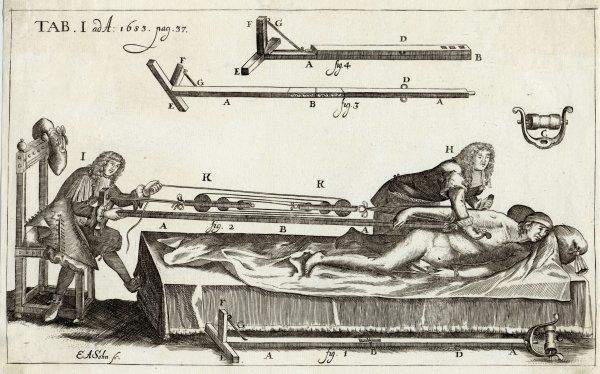 Surgeons setting a bone, with the help of Michault's bone- setting apparatus