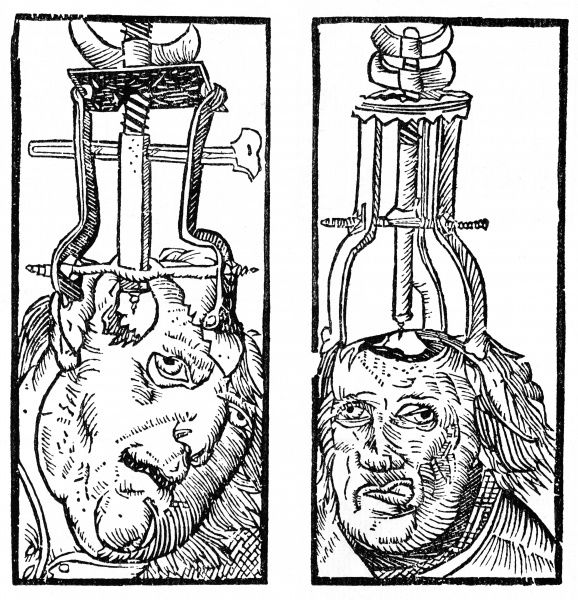 Devices enabling incisions in the skull and giving access to the brain which must have been an interesting experience for the patient. Date: 1525