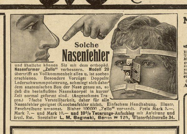 If you want to change the shape of your nose, just use Herr Spezialist Baginski's delightful device