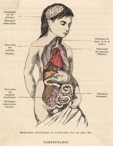 Diagram to show how tuberculosis manifests itself in the body of a young girl
