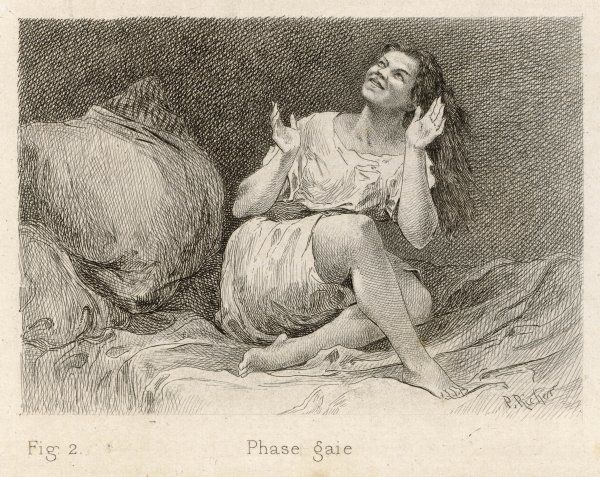 Mental patient at La Salpetriere, sitting on her bed in 'phase gaie&#39