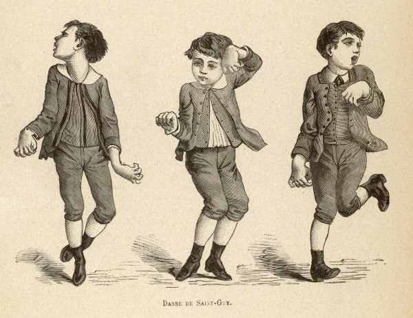 Boys afflicted with Chorea, known as St Vitus' dance, or as Danse de Saint-Guy in France
