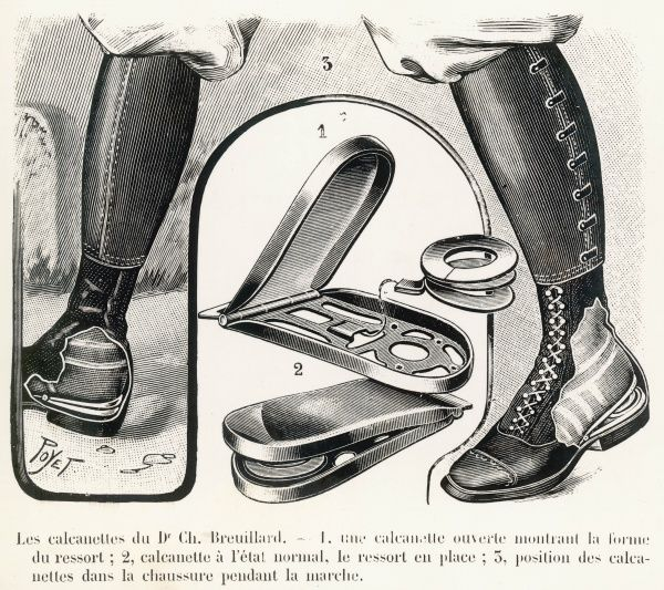 Dr. Charles Breuillard's device to assist walking, basically a spring-loaded shoe insert, which aids the raising of the heel
