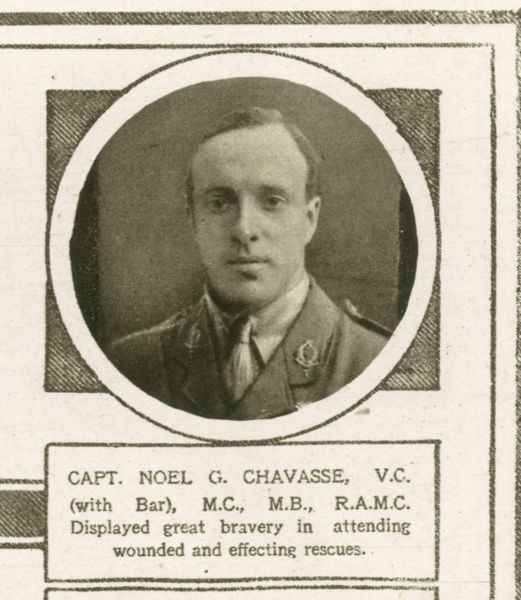 Captain Noel G. Chavasse was Medical Officer to the 1/ 10th Battalion of the King's Liverpool Regiment during the First World War, and is the only person to have been awarded the Victoria Cross twice for the same war. He was awarded his first V