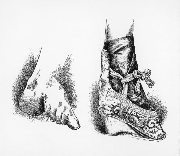 The damage caused by the practise of Chinese foot- binding to the structure of the foot, and the foot as it would appear encased in a shoe