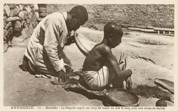 Remedies: Bloodletting (after a razor has drawn blood) using a cow horn. Date: circa 1910s
