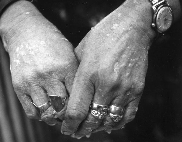 Close-up of a middle-aged gipsy woman's hands, blemished with hard work. She is wearing several rings on both hands, and a man-sized watch