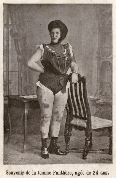 24-year-old French woman - labelled as a 'Panther Woman' due to her mottled skin. This 24 year-old lady is obviously making quite a career through her affliction. Date: circa 1910s