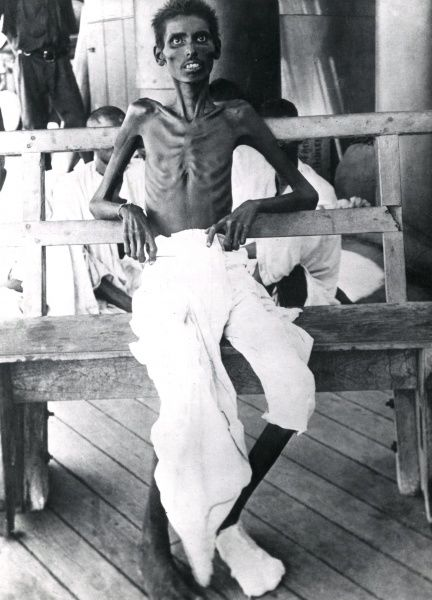 An Indian soldier in an emaciated condition after the Siege of Kut (1916), Mesopotamia (now Iraq), during the First World War. Date: circa 1916
