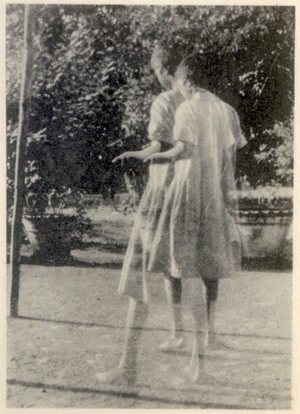 MIDNAPORE, INDIA Kamala, five years after living with wolves 1912-1920, sometimes walks on her two legs [photo double-exposed]