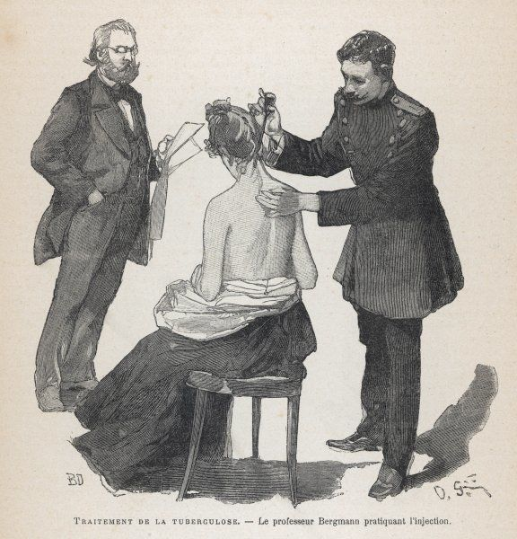 Koch's tuberculosis cure; a patient is inoculated in the back of her neck