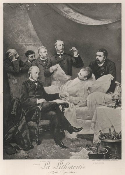 Eminent French doctors examine a patient after a successful operation for lithotritie