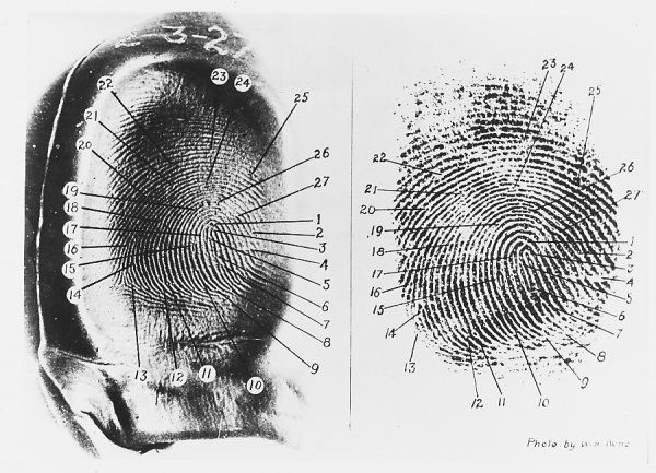 Comparison of the thumbprint of Walter, control of American medium 'Margery', with that of a living Boston dentist - one of the dubious items which aroused suspicions of tricks