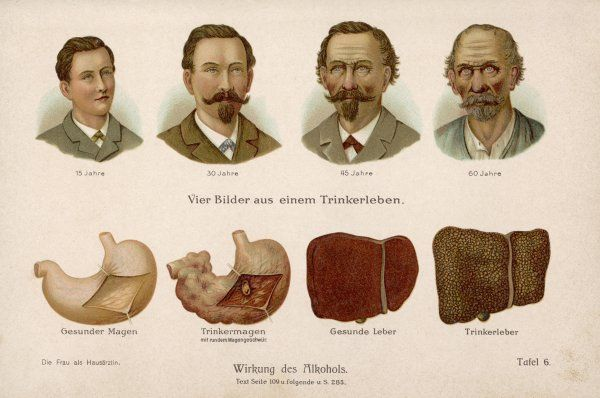An illustration of how alcohol abuse affects the appearance and liver of a man through different stages of his life