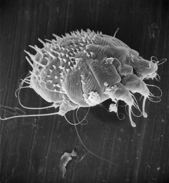 Scanning electron microscope image of an itch or scabies mite, a parasite that infests a wide variety of mammalian hosts including man. Date