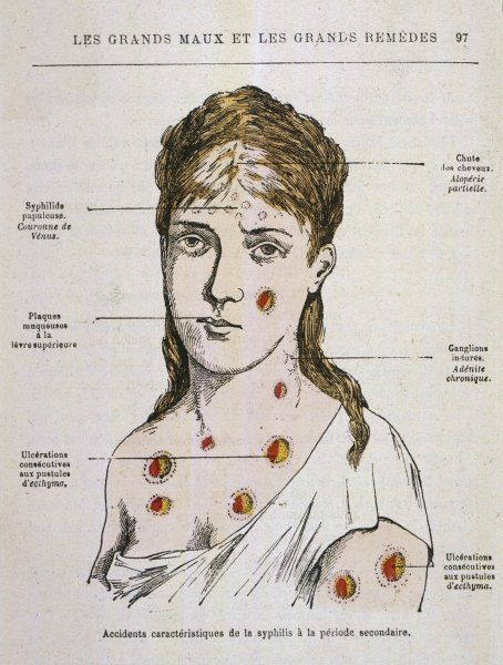 Diagram to show the rash which appears in the second stage of syphilis