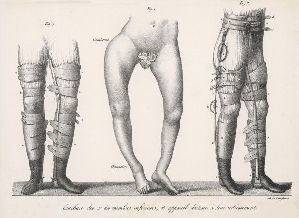 Bow legs and their treatment with apparatus intended to straighten them