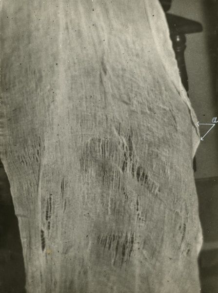 "Undated photograph of enlarged portion of ""ectoplasm"", showing rents, warps and weft"