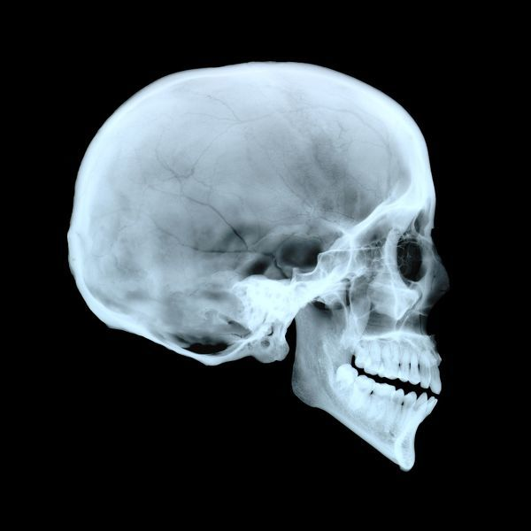 Adult human skull. Side view X-ray showing the cranium ... Skull X Ray Views Chart