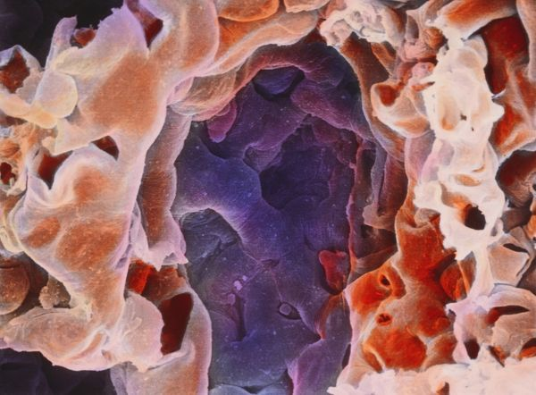 colour of human lungs