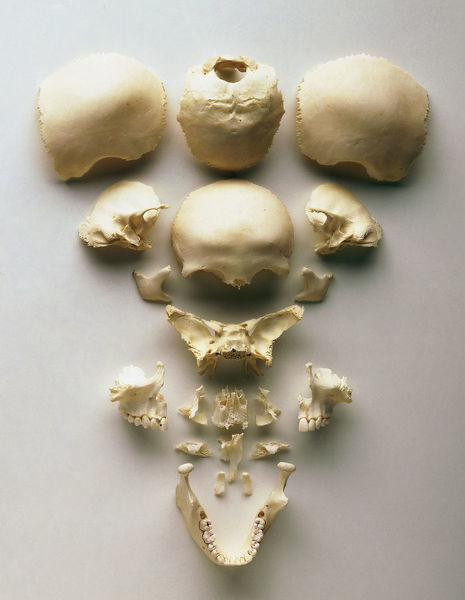 Human skull separated into its individual bones, including front, cheek, concha, vomer, nasal and jaw bones