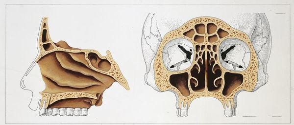 Illustration Of Paranasal Sinuses Sagittal And Frontal Sections