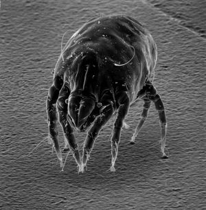 Dermatophagoides sp., dust mite