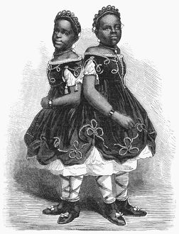 THE CAROLINA TWINS, 1866. Millie and Christine McKoy, American conjoined twins