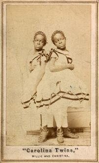 THE CAROLINA TWINS, c1866. Millie and Christine McKoy, American conjoined twins