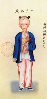 disease healthcare/chinese girl suffering smallpox watercolor