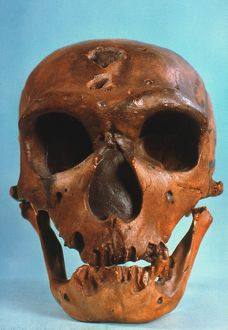NEANDERTHAL SKULL. Frontal view of typical Neanderthal skull from La Chapelle-aux-Saints.
