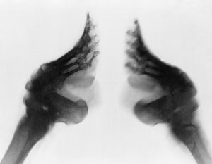 disease healthcare/x ray lily footed woman china c1890 1923