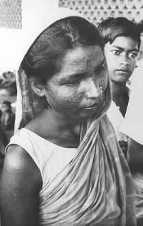 Indian woman with Smallpox scars