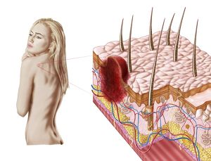 medical/illustration atypical growth skin sign skin cancer